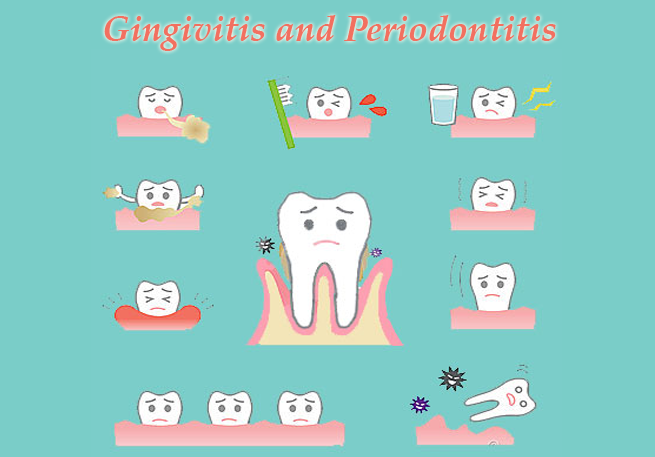 Causes Of Gingivitis and Periodontitis?