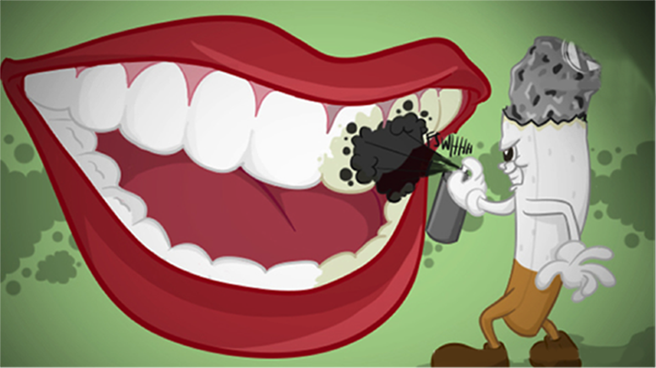 Why Smoking is Bad For Your Teeth.